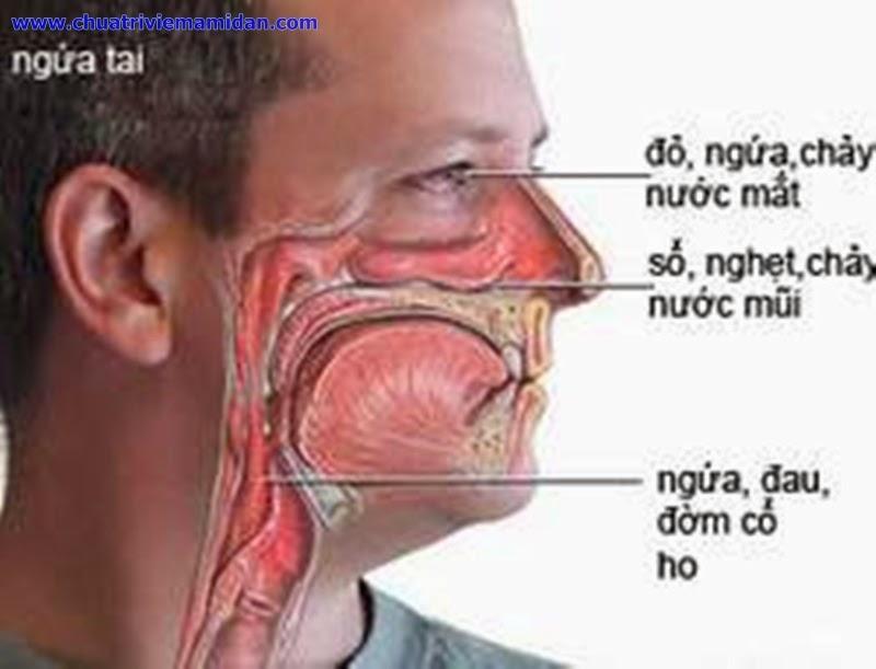 Thuốc chữa bệnh viêm mũi dị ứng hiệu quả nhất