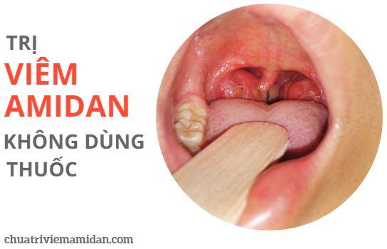Trị viêm amidan không cần dùng thuốc Tây