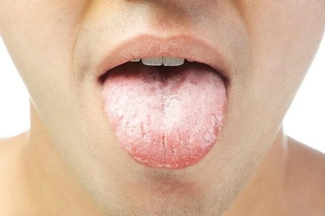 Triệu chứng bệnh viêm amidan cấp tính