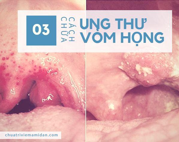 Bệnh ung thư vòm họng là gì? ung thư vòm mũi họng