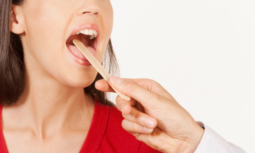 phác đồ điều trị viêm họng