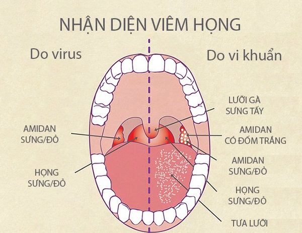 huong-dan-nhan-biet-viem-hong-lien-cau-khuan-de-dang