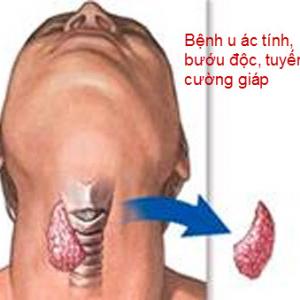 bi-buou-co-ac-tinh-co-chua-duoc-khong