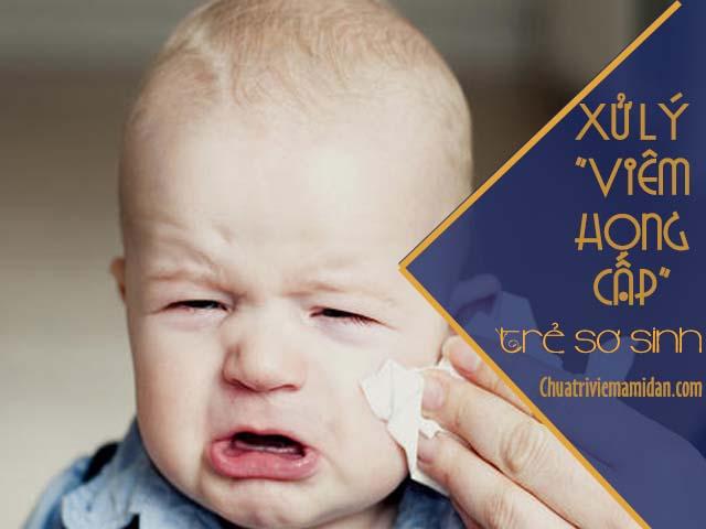 Điều trị viêm họng cấp ở trẻ sơ sinh