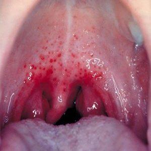 Dấu hiệu của bệnh Amidan lưỡi và cách chữa trị