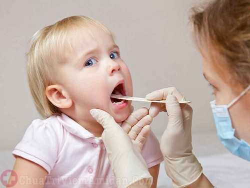 Trẻ em bị mắc bệnh viêm amidan bao lâu thì khỏi?