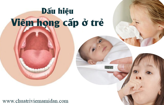 Dấu hiệu viêm họng cấp
