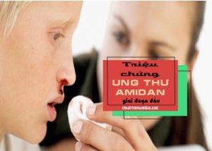 dấu hiệu nghi ngờ ung thư amidan