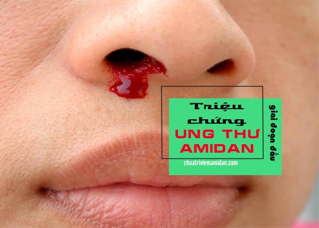 biểu hiện của ung thư amidan